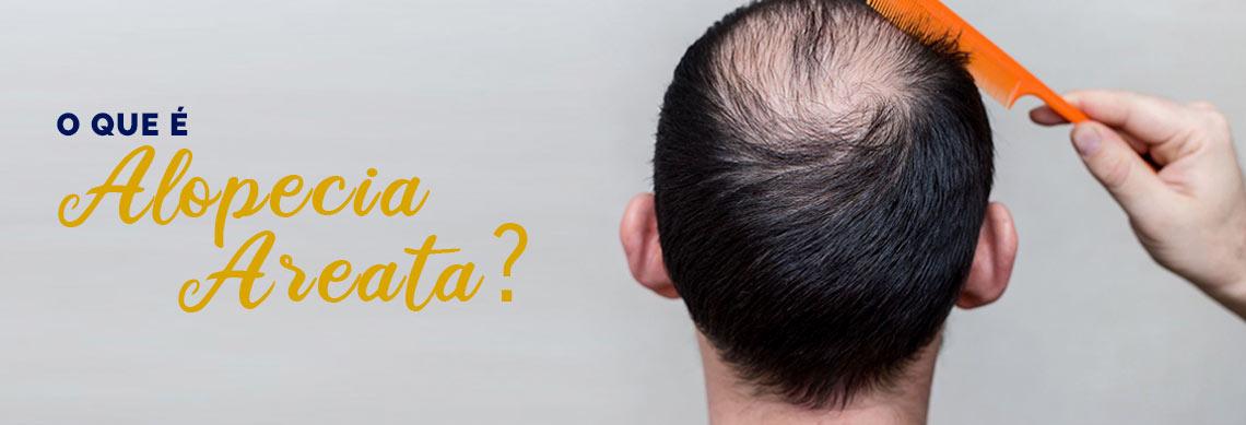 O que é a Alopecia Areata?